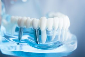 Considering Getting Dental Implants? Here's what you Should Know